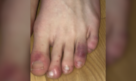 New study finds evidence between COVID-19 and 'COVID toes' symptom