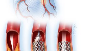 Angina treatment: Stents, drugs, lifestyle changes — What's best?